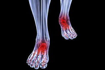 Arthritic foot and ankle care treatment in the Arlington, TX 76013 area