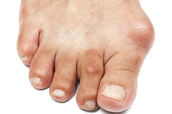 bunions treatment in the Arlington, TX 76013 area