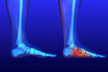 Flat feet treatment in the Arlington, TX 76013 area