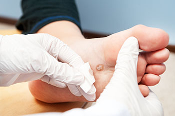 plantar wart treatment in Arlington, TX 76013